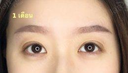 มาแจกความสดใส พร้อมตาคู่สวย หลังแก้ไขกล้ามเนื้อตาอ่อนแรง