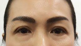 ปรับโหงวเฮ้งใบหน้า ด้วยการรักษากล้ามเนื้อตาอ่อนแรง