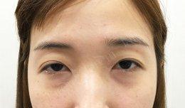 แก้ไขกล้ามเนื้อตาอ่อนแรง สวยที่ไทย ไม่ต้องไปไกลถึงเกาหลี