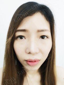รีวิวทำตา ของผู้ที่มีปัญหาหนังตาตก+กล้ามเนื้อตาอ่อนแรง