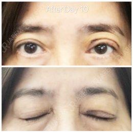 เปลี่ยนตัวเองให้ดูดีขึ้น หลังแก้ไขกล้ามเนื้อตาอ่อนแรงแต่กำเนิด