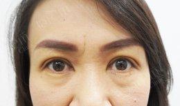 รีวิวกล้ามเนื้อตาอ่อนแรง ในคนอายุ 40+