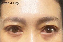 รักษาอาการตาปรือ หน้าเหนื่อย หน้าง่วง จากกล้ามเนื้อตาอ่อนแรง