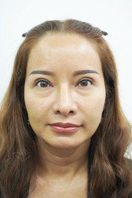 ประสบการณ์ทำตาครั้งที่ 4 กับการแก้ไขกล้ามเนื้อตาอ่อนแรง