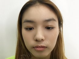 ภาวะกล้ามเนื้อตาอ่อนแรงในผู้ที่มีอายุน้อยเป็นอย่างไร? มาเรียนรู้กัน!