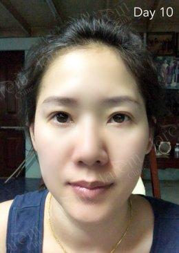 จบปัญหากล้ามเนื้อตาอ่อนแรง เมื่อรักษาถูกต้องและตรงจุด