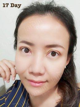 เปลี่ยนกล้ามเนื้อตาอ่อนแรงแต่กำเนิด ให้เป็นตาสวยใส