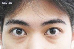 รักษากล้ามเนื้อตาอ่อนแรงแต่กำเนิด ที่จาเรมคลินิก > คลินิกที่คุณแม่แนะนำ