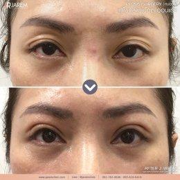 รีวิวกล้ามเนื้อตาอ่อนแรง จากคนเคยตาปรือ ชั้นตาเหี่ยวย่น