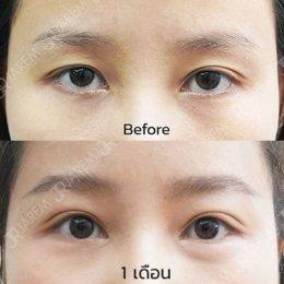 กล้ามเนื้อตาอ่อนแรง ต้นเหตุอาการตาปรือ ตาล้า ไม่สดใส