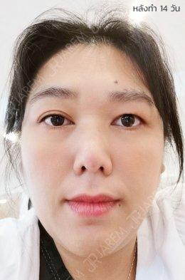 """รักษากล้ามเนื้อตาอ่อนแรงแต่กำเนิด ด้วยการ """"ร้อยเอ็นเทียม"""""""