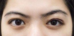 กล้ามเนื้อตาอ่อนแรงแต่กำเนิดเป็นอย่างไรมาดูกัน?