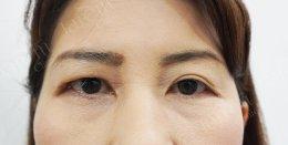 การร้อยเอ็นเทียมเพื่อรักษากล้ามเนื้อตาอ่อนแรงแต่กำเนิด