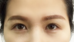 รักษากล้ามเนื้อตาอ่อนแรง ไม่อยากตาสวยแบบปลอมๆ ต้องเชื่อหมอ