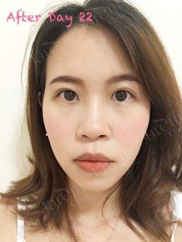 เรียกคืนดวงตาคู่สวย ด้วยการแก้ไขกล้ามเนื้อตาอ่อนแรงให้ถูกจุด
