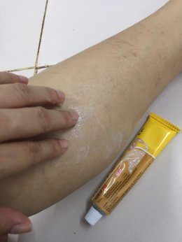 Diclofenac gel for relief of pain and inflammation