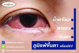 น้ำตาไหล ตาแดง คันตา คุณเป็นภูมิแพ้ขึ้นตาหรือเปล่า?