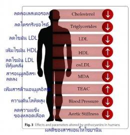 ความดันสูง ไขมันเกิน น้ำตาลคุมไม่ได้ เสี่ยงตายสูงเพราะเส้นเลือดหัวใจอุดตัน