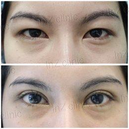ทำไมถึงควรทำศัลยกรรมตาสองชั้น กับจักษุแแพทย์