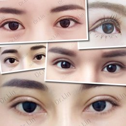 Current methods of double eyelid surgery, pros & cons