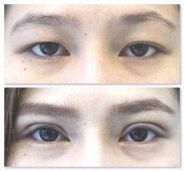 หมดปัญหาชั้นตาหลบใน เมื่อทำตาสองชั้นแบบกรีดยาว!
