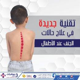 تقنية جديدة في علاج حالات الجنف عند الأطفال