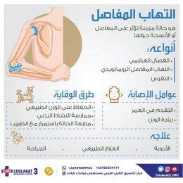 7 نصائح للوقاية من مرض الفصال العظمي