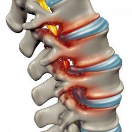 7 أعراض للانزلاق الغضروفي والألم الشديد