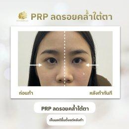 PRP ลดรอยคล้ำใต้ตา