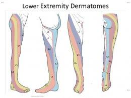 คุณยายวัย 80 มานวดรักษาอาการปวดสะโพกร้าวลงขา ชาเท้า