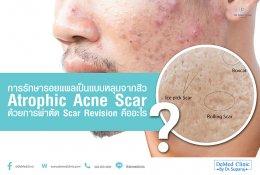 การรักษารอยแผลเป็นแบบหลุมจากสิว Atrophic Acne Scar ด้วยการผ่าตัด Scar Revision คืออะไร ?