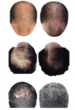 ปลูกผมด้วยเทคนิคพิเศษล่าสุด Regenera Hair Stem MicroTransplantation Plus (HSMT+)