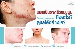 แผลเป็นจากสิวแบบนูน Papular acne scar คืออะไร ?ดูแลได้อย่างไร ?