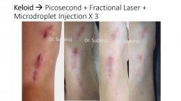 เทคนิคดูแลแผลเป็นนูน คีลอยด์ Keloid ด้วยเลเซอร์ Triple Laser Therapy: Picosecond + Gold Toning + Fractional Laser