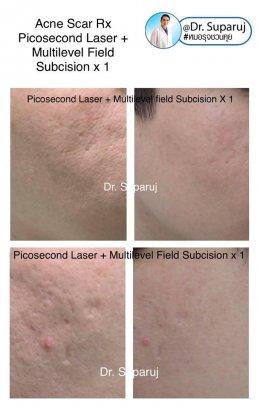 หลุมสิวแบบปากแคบ Icepick acne scar