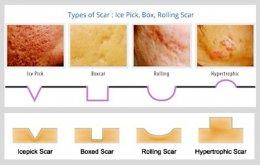 เทคนิคการดูแลหลุมสิวแบบกล่อง Boxcar scar