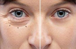หนังตาตก คิ้วตก แก้ได้ไม่ต้องผ่าตัด ด้วยเลเซอร์แก้ไขหนังตาตก