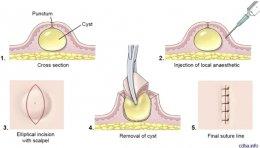 ก้อนซีสต์ Steatocystoma Multiplex คืออะไร รักษาได้อย่างไร ?