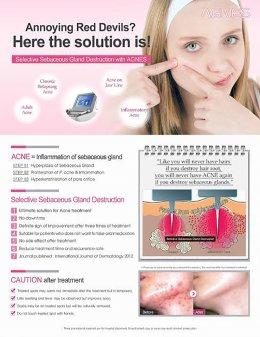 ดูแลรักษาสิวด้วยเทคนิคเข็มคลื่นวิทยุทำลายต่อมไขมัน Micro Insulated Needle RF Acne Resolve