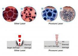เทคนิคการฉีดสารซึ่งช่วยลดแรงตึงตัวของแผลเป็นนูนคีลอยด์และช่วยลดการทำงานของเซลล์ Fibroblast