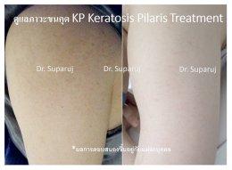 คำแนะนำในการดูแลผิวสำหรับผู้ที่มีปัญหาขนคุด KP Keratosis Pilaris