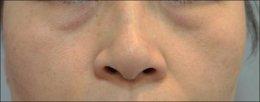 รอยคล้ำใต้ตา เกิดจากอะไรรักษาได้อย่างไรบ้าง
