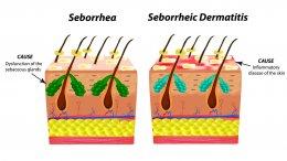 โรคหนังศีรษะอักเสบจากต่อมไขมันอักเสบ (SEBORRHEIC DERMATITIS) คืออะไร?