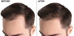 การปลูกผม (Hair Transplantation) คืออะไร