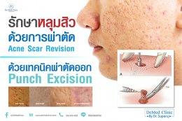 รักษาหลุมสิวด้วยการผ่าตัด Acne Scar Revision ด้วยเทคนิคผ่าตัดออก Punch Excision