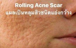 Rolling Acne Scars รอยแผลเป็นหลุมจากสิวที่มีลักษณะกว้าง และตื้น คล้ายกระทะ ก้นแผลจะดูไม่เรียบ เกิดจากสิวอักเสบขนาดใหญ่ที่เกิดการยุบตัวลงของผิว รอยยุบเป็นแอ่งกว้างคล้ายกระทะ