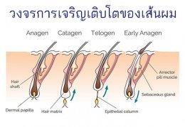 ผมบางศีรษะล้านจากพันธุกรรมในเพศหญิง  Androgenetic Alopecia AGA, Female pattern hair loss