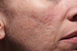 การรักษาหลุมสิวด้วยเกล็ดเลือดเข้มข้น Platelet-Rich Fibrin PRF ร่วมกับการตัดพังผืดใต้ผิวหนัง Subcision