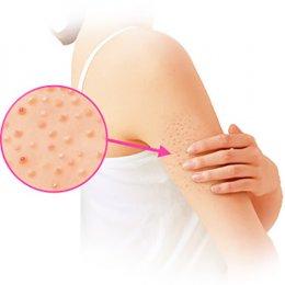 โปรแกรมเลเซอร์รักษา ขนคุด Keratosis Pilaris (KP) Treatment Program by De Med Clinic ผิวเรียบเนียนสวย ลดผิวขรุขระคล้ายหนังไก่ ลดอาการคันรอยดำ