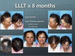 มาชมเทคโนโลยีในการรักษาผมบางด้วย แสงเลเซอร์ความเข้มข้นต่ำ Low Level Laser Therapy LLLT กันครับ